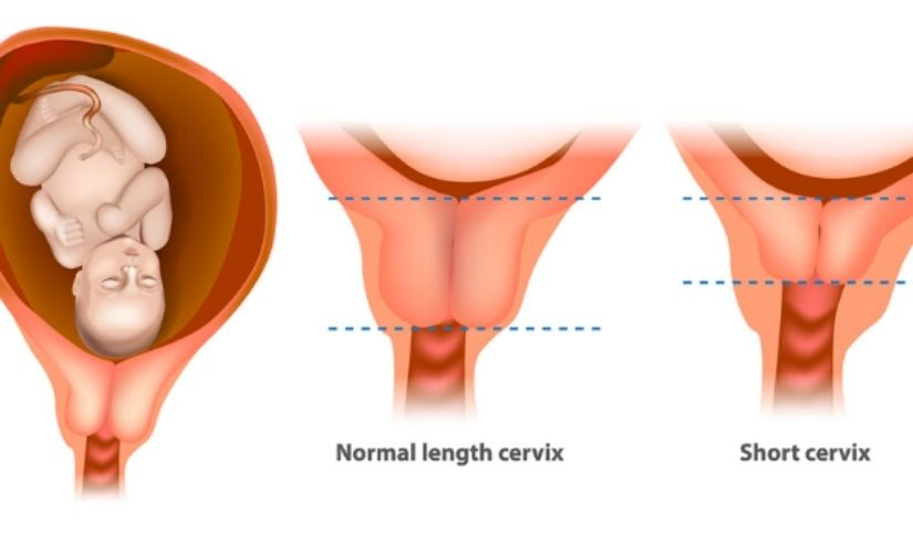 Cervix Is More Dilated