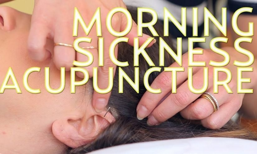 Acupuncture A Way To Reduce The Effects Of Morning Sickness Easily